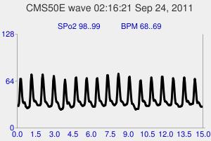 OK pulse